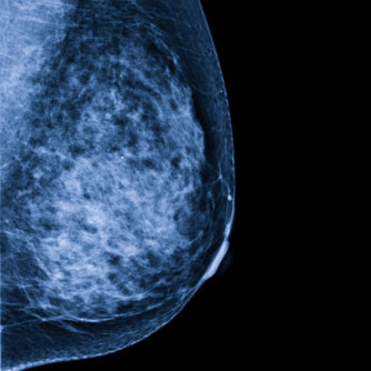 Implant Improves Breast Cancer Survival