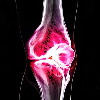 "For Knee Condition, Supplement Shows ""Comparable Efficacy"" to Drug"