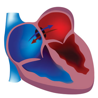 Doppler Detects Heart Defect