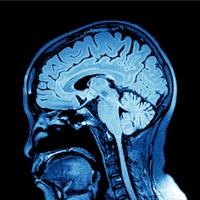 Anti-Aging Brain