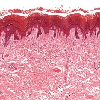 Skin Biopsy