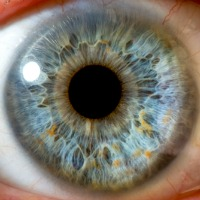 End to Vision Loss In-Sight