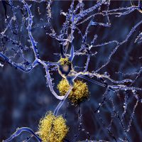 Mechanism of Alzheimer's Onset Revealed
