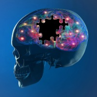 Alzheimer's Disease: Multifactorial and Modifiable