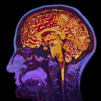 Alzheimer's Disease: A Diabetic Disorder of the Brain