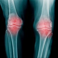 Preventing Osteoarthritis by Altering Metabolism