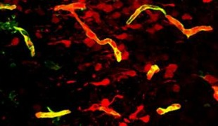 Omega 3 Fatty Acids Preserve Blood Brain Barrier