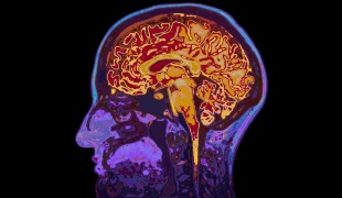 Alzheimer's Disease Actually a Diabetic Disorder of Brain