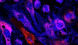 Repairing Bones with Stem Cells