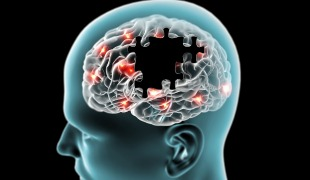 DNA Vaccine Protects Against Alzheimers