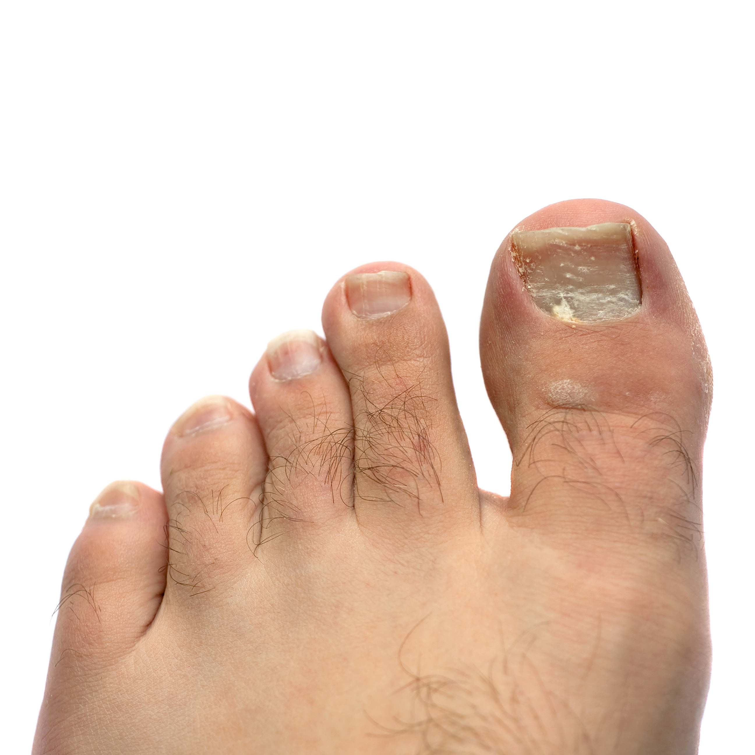 Image result for Nail Fungus! What Is It Exactly!